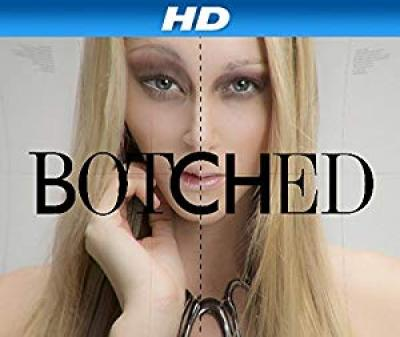 Botched S05E10 Playing With Fire HDTV x264 CRiMSON